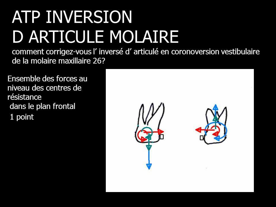 Ensemble des forces au niveau des centres de résistance dans le plan frontal 1 point ATP INVERSION D ARTICULE MOLAIRE comment corrigez-vous l' inversé