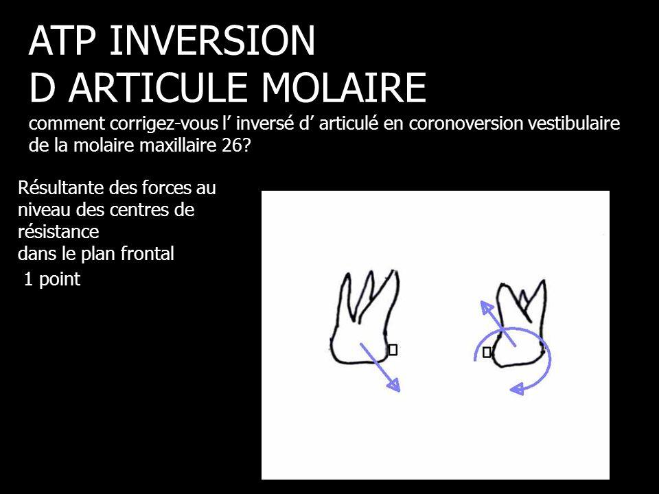Résultante des forces au niveau des centres de résistance dans le plan frontal 1 point ATP INVERSION D ARTICULE MOLAIRE comment corrigez-vous l' inver