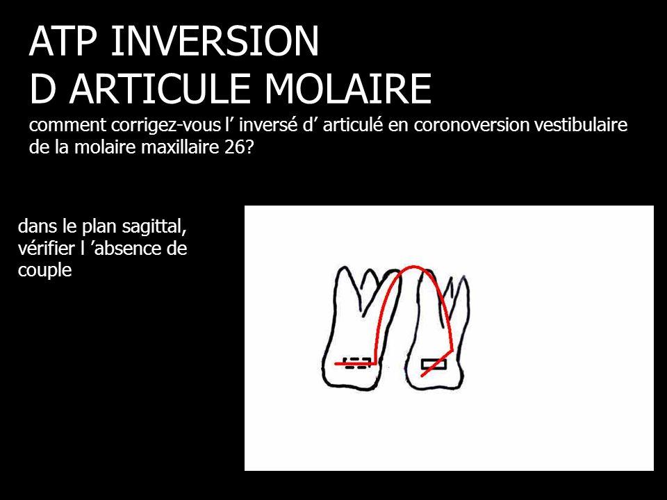 dans le plan sagittal, vérifier l 'absence de couple ATP INVERSION D ARTICULE MOLAIRE comment corrigez-vous l' inversé d' articulé en coronoversion ve