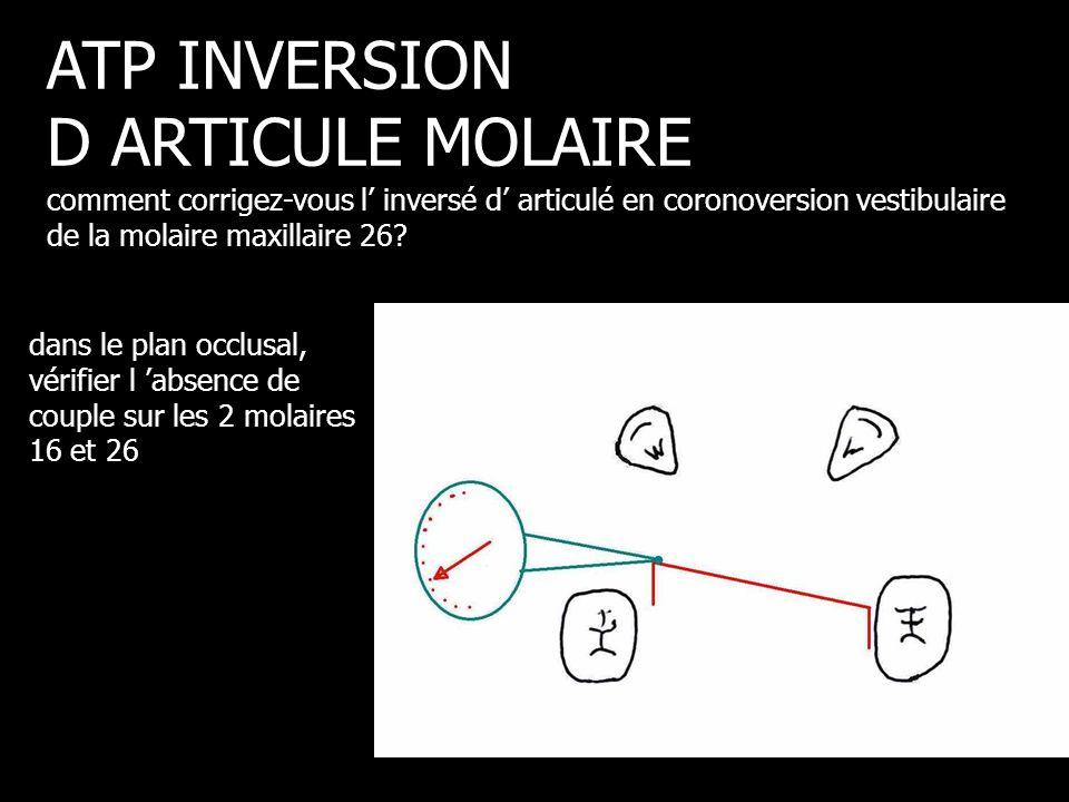 dans le plan occlusal, vérifier l 'absence de couple sur les 2 molaires 16 et 26 ATP INVERSION D ARTICULE MOLAIRE comment corrigez-vous l' inversé d'