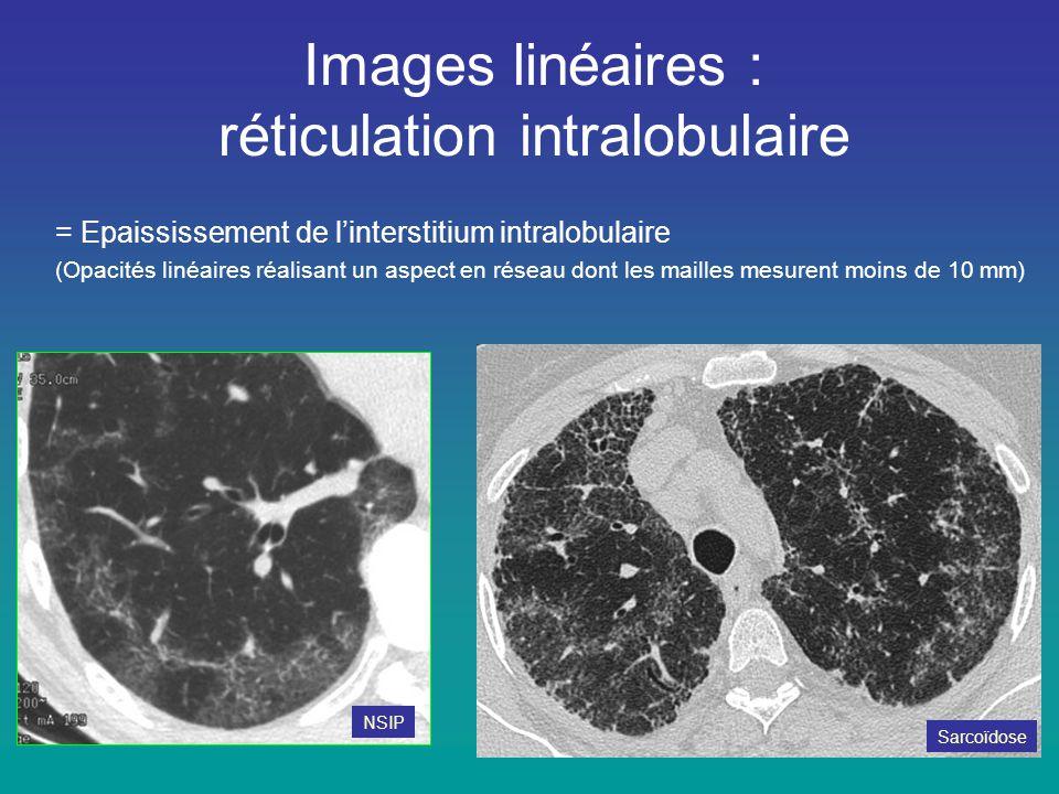 Images linéaires : réticulation intralobulaire = Epaississement de l'interstitium intralobulaire (Opacités linéaires réalisant un aspect en réseau don