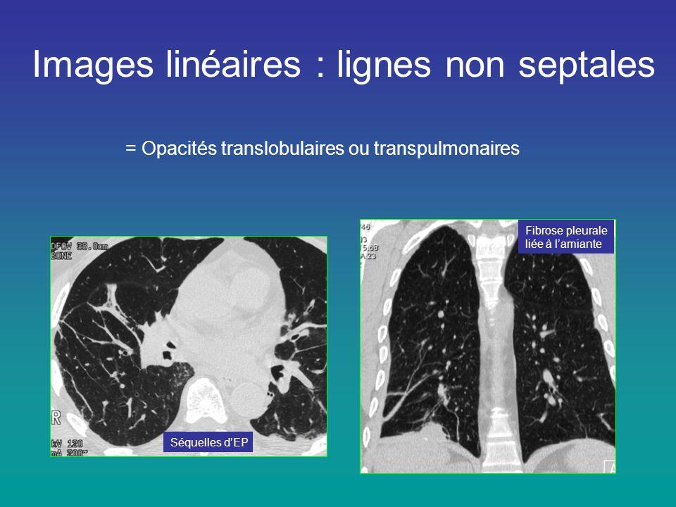 Images linéaires : lignes non septales = Opacités translobulaires ou transpulmonaires Séquelles d'EP Fibrose pleurale liée à l'amiante