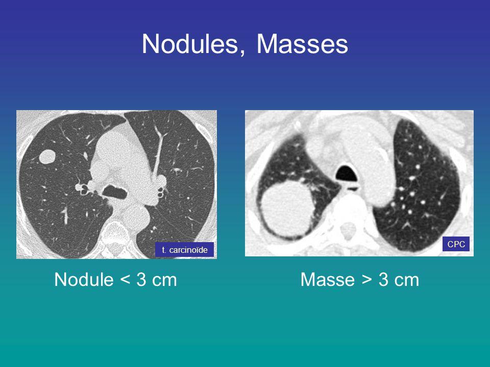 Nodules, Masses Nodule < 3 cmMasse > 3 cm t. carcinoïde CPC