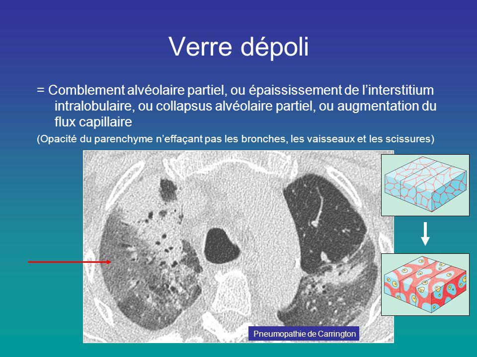 Verre dépoli = Comblement alvéolaire partiel, ou épaississement de l'interstitium intralobulaire, ou collapsus alvéolaire partiel, ou augmentation du