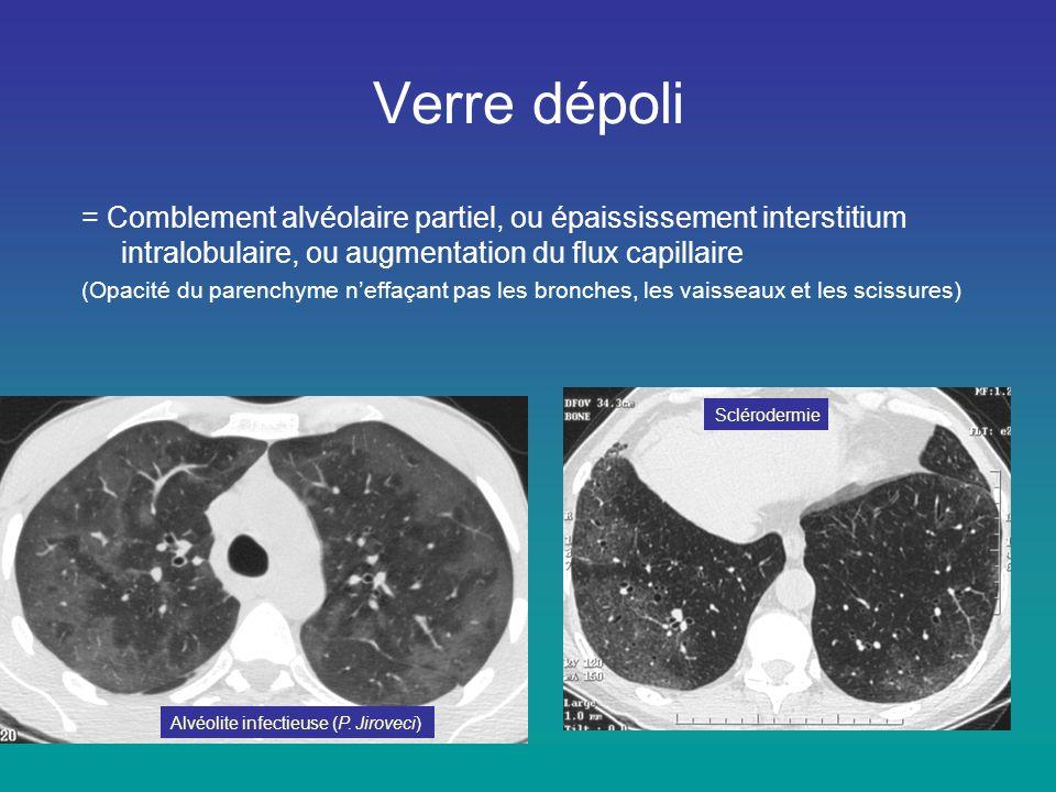 = Comblement alvéolaire partiel, ou épaississement interstitium intralobulaire, ou augmentation du flux capillaire (Opacité du parenchyme n'effaçant p