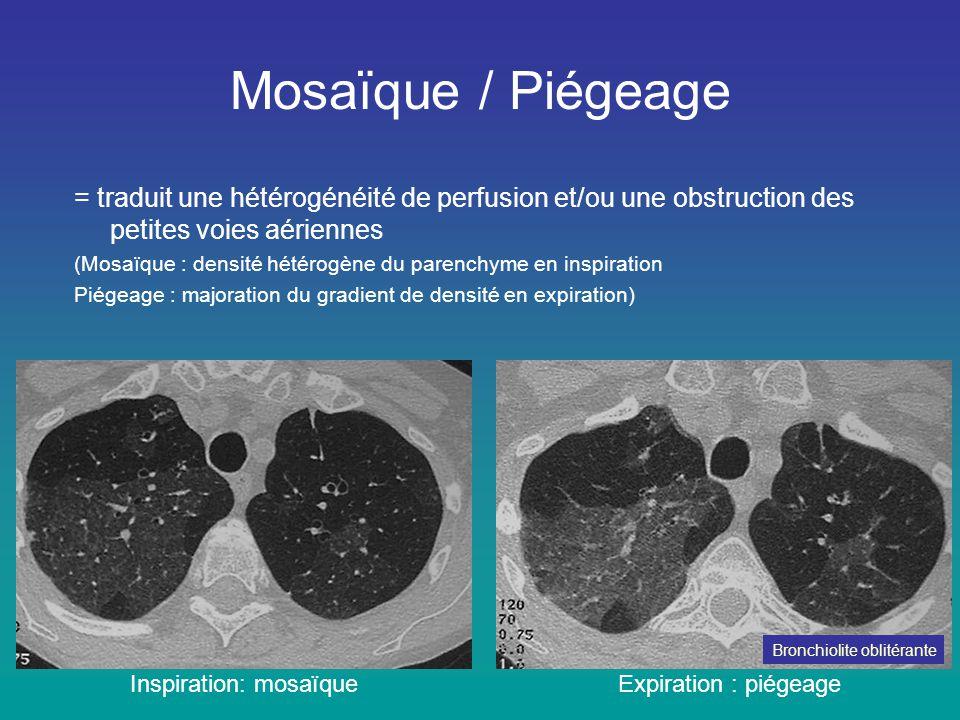 Mosaïque / Piégeage Inspiration: mosaïqueExpiration : piégeage = traduit une hétérogénéité de perfusion et/ou une obstruction des petites voies aérien