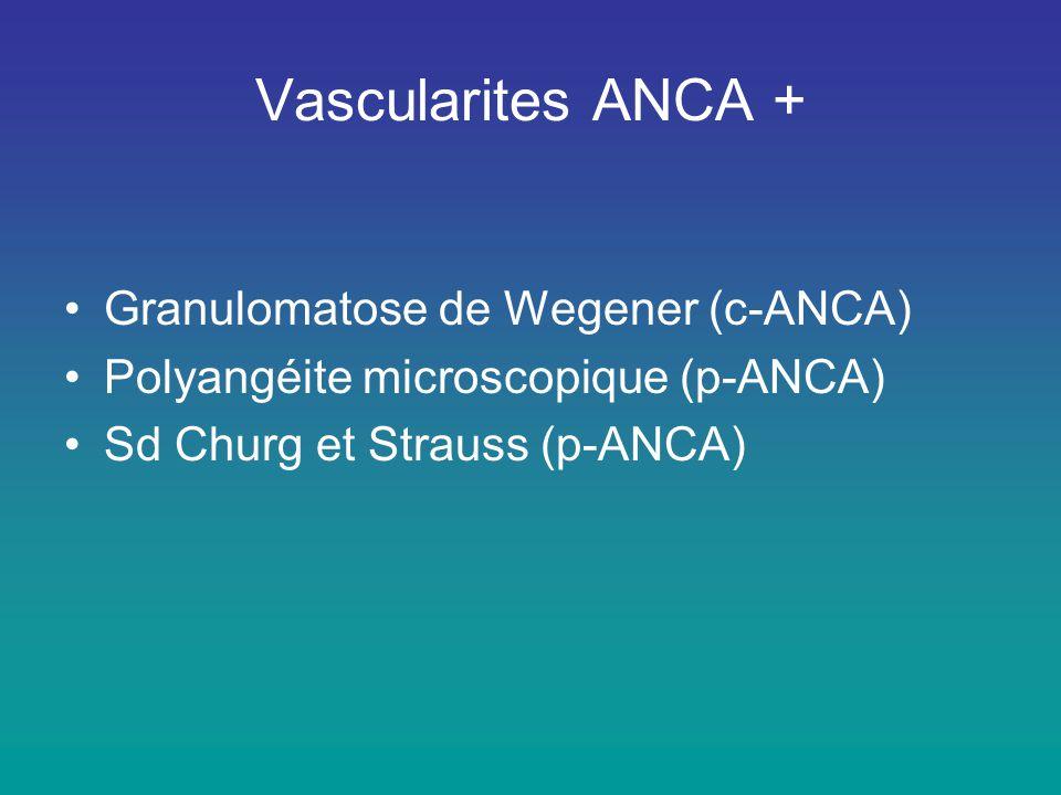 Vascularites ANCA + •Granulomatose de Wegener (c-ANCA) •Polyangéite microscopique (p-ANCA) •Sd Churg et Strauss (p-ANCA)