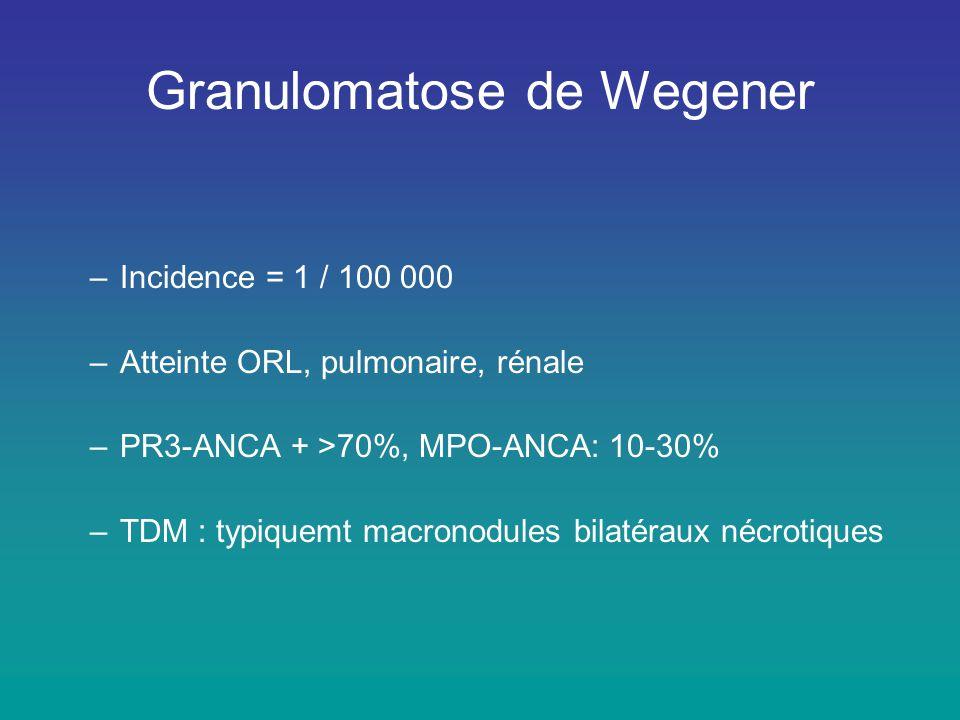 Granulomatose de Wegener –Incidence = 1 / 100 000 –Atteinte ORL, pulmonaire, rénale –PR3-ANCA + >70%, MPO-ANCA: 10-30% –TDM : typiquemt macronodules b