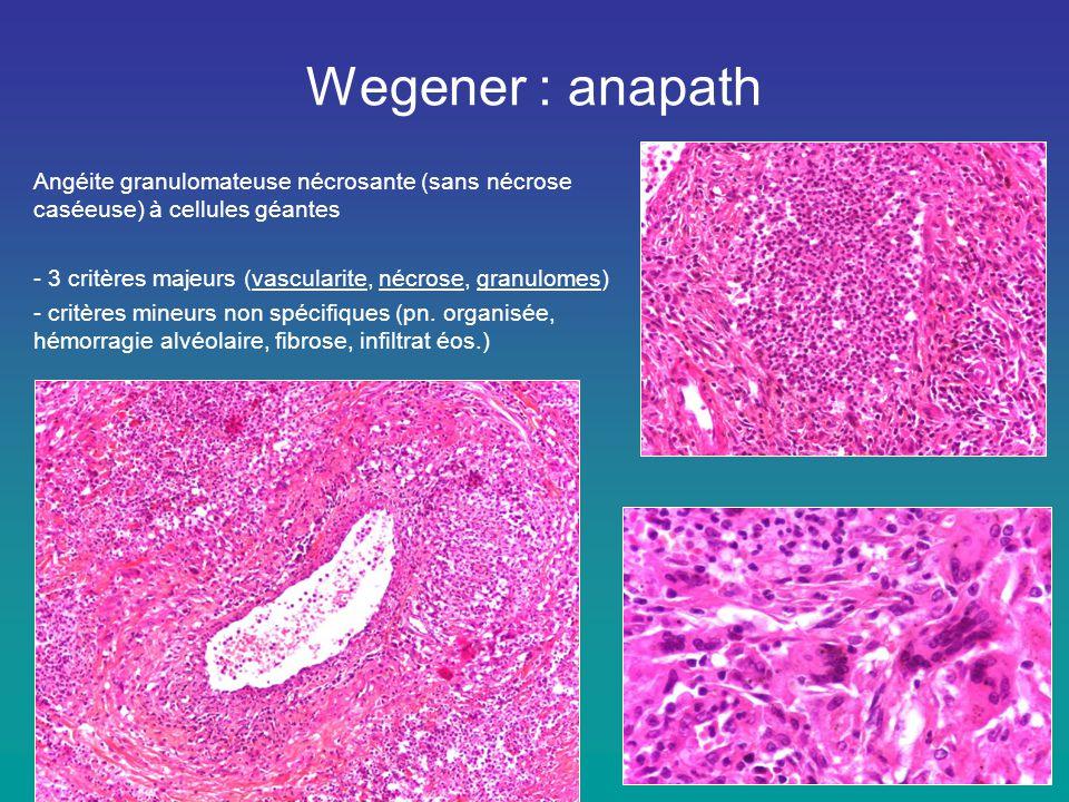 Wegener : anapath Angéite granulomateuse nécrosante (sans nécrose caséeuse) à cellules géantes - 3 critères majeurs (vascularite, nécrose, granulomes)