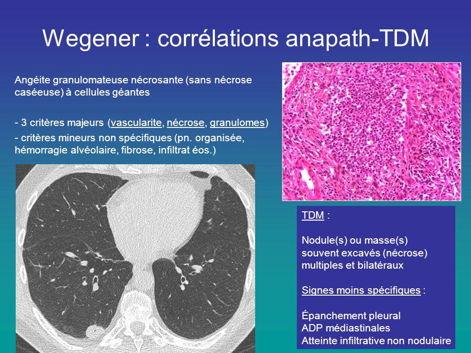 Angéite granulomateuse nécrosante (sans nécrose caséeuse) à cellules géantes - 3 critères majeurs (vascularite, nécrose, granulomes) - critères mineur