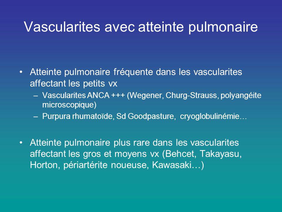 Cryoglobulinémie essentielle –Atteinte cutanée, articulaire, rénale, neuropathie périphérique –Atteinte pulmonaire rare (2%) de mauvais pronostic –TDM : Hémorragie alvéolaire diffuse