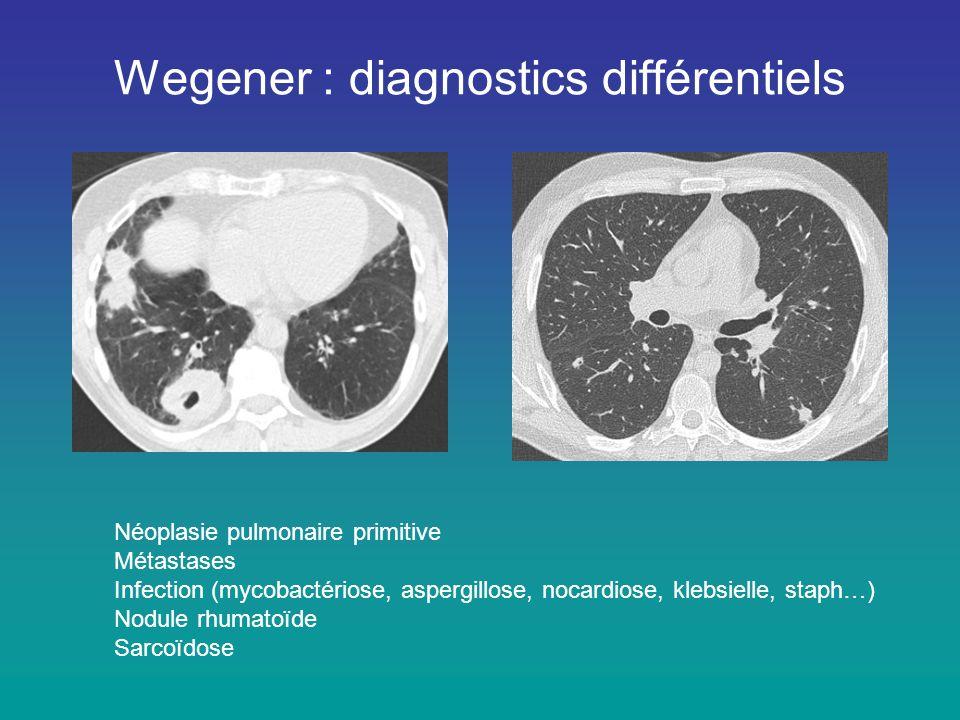 Wegener : diagnostics différentiels Néoplasie pulmonaire primitive Métastases Infection (mycobactériose, aspergillose, nocardiose, klebsielle, staph…)