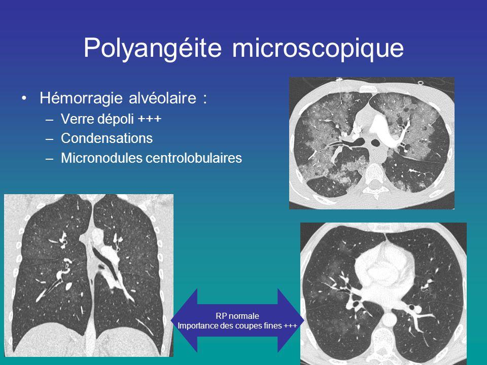 Polyangéite microscopique •Hémorragie alvéolaire : –Verre dépoli +++ –Condensations –Micronodules centrolobulaires RP normale Importance des coupes fi