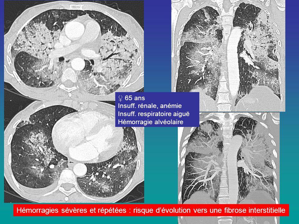 ♀ 65 ans Insuff. rénale, anémie Insuff. respiratoire aiguë Hémorragie alvéolaire Hémorragies sévères et répétées : risque d'évolution vers une fibrose