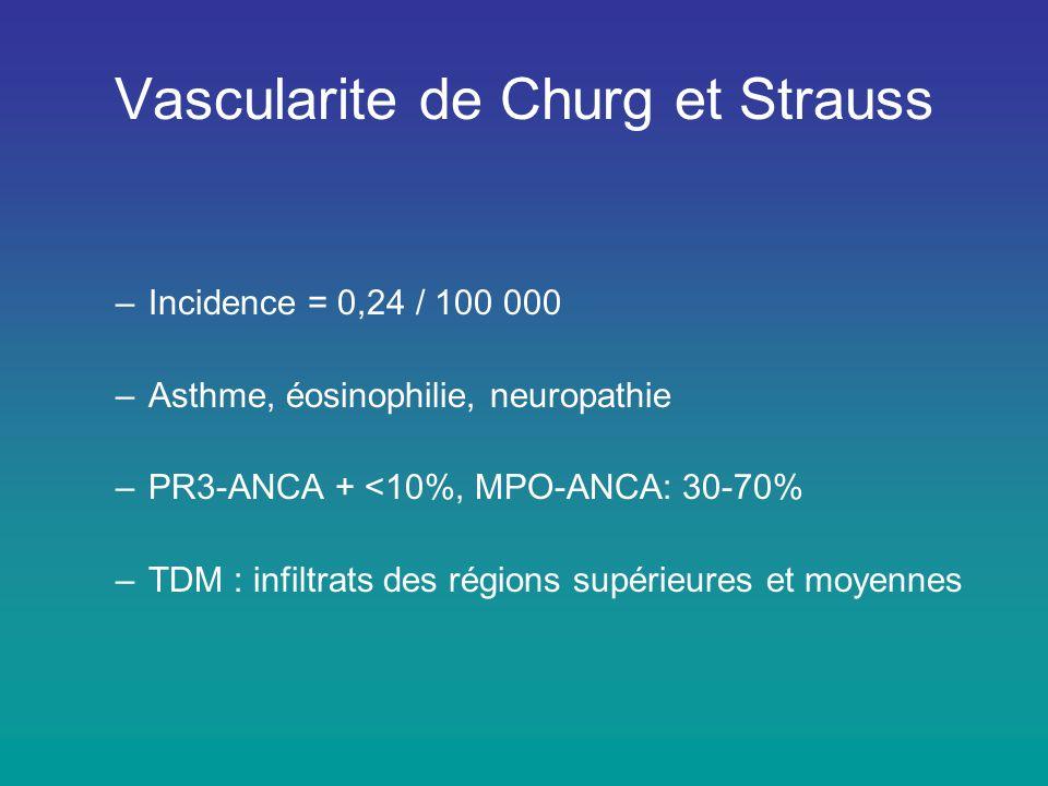 Vascularite de Churg et Strauss –Incidence = 0,24 / 100 000 –Asthme, éosinophilie, neuropathie –PR3-ANCA + <10%, MPO-ANCA: 30-70% –TDM : infiltrats de