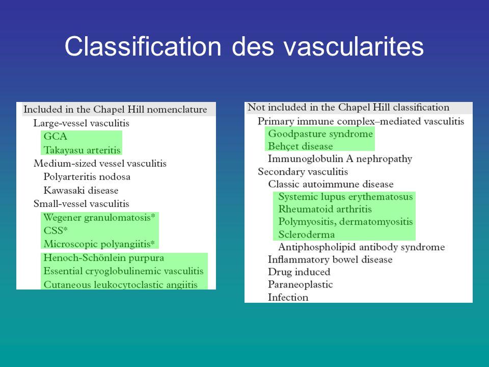 Vascularite de Churg et Strauss –Incidence = 0,24 / 100 000 –Asthme, éosinophilie, neuropathie –PR3-ANCA + <10%, MPO-ANCA: 30-70% –TDM : infiltrats des régions supérieures et moyennes
