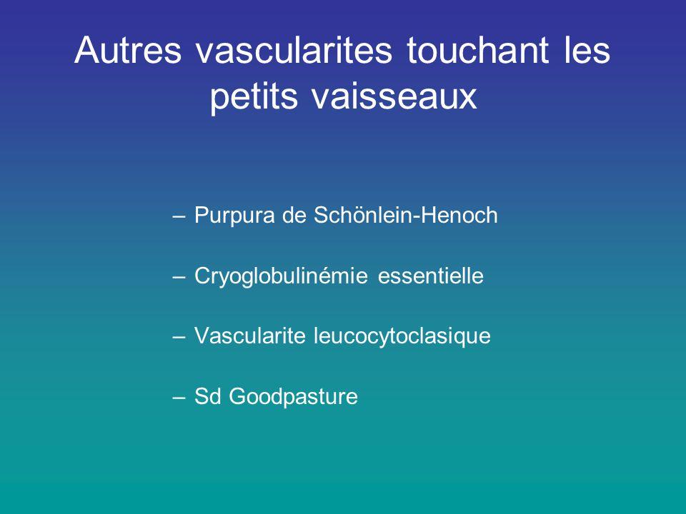 Autres vascularites touchant les petits vaisseaux –Purpura de Schönlein-Henoch –Cryoglobulinémie essentielle –Vascularite leucocytoclasique –Sd Goodpa