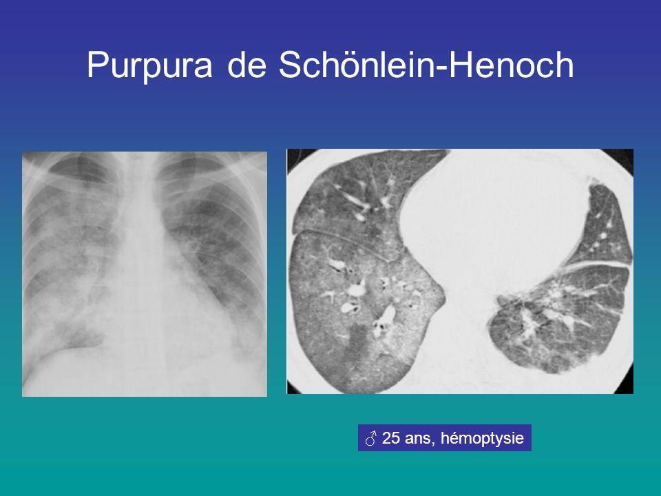 Purpura de Schönlein-Henoch ♂ 25 ans, hémoptysie