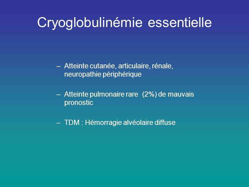 Cryoglobulinémie essentielle –Atteinte cutanée, articulaire, rénale, neuropathie périphérique –Atteinte pulmonaire rare (2%) de mauvais pronostic –TDM