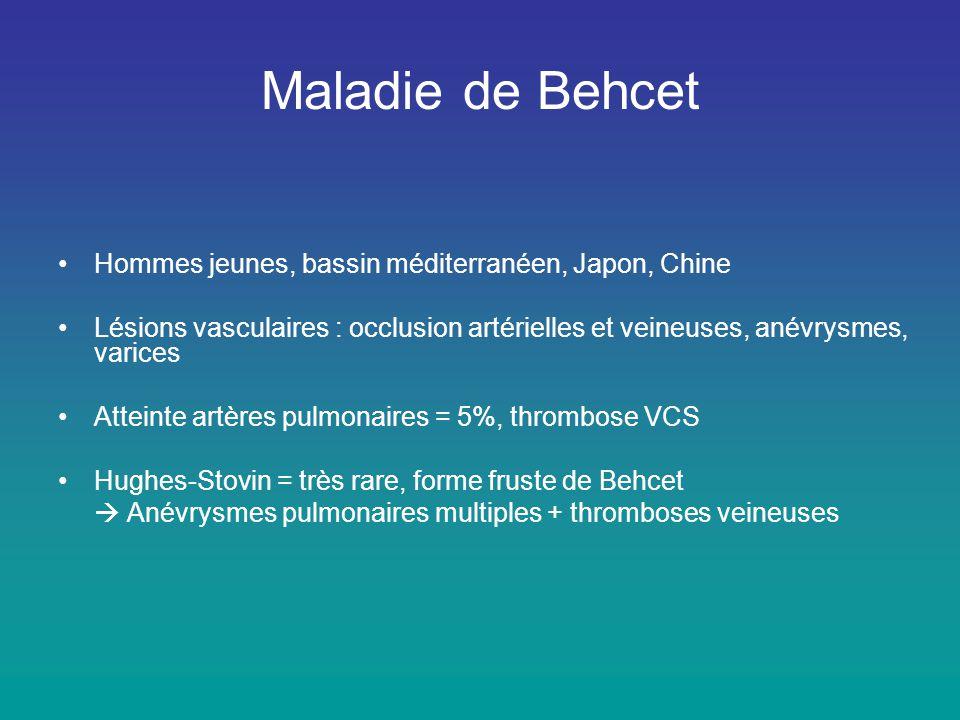 Maladie de Behcet •Hommes jeunes, bassin méditerranéen, Japon, Chine •Lésions vasculaires : occlusion artérielles et veineuses, anévrysmes, varices •A