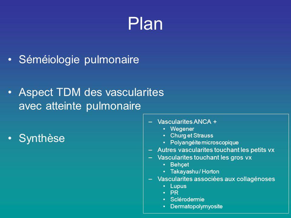 Angéite granulomateuse nécrosante (sans nécrose caséeuse) à cellules géantes - 3 critères majeurs (vascularite, nécrose, granulomes) - critères mineurs non spécifiques (pn.