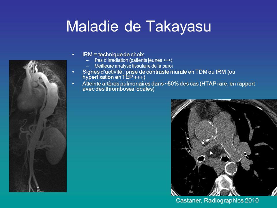 Maladie de Takayasu •IRM = technique de choix –Pas d'irradiation (patients jeunes +++) –Meilleure analyse tissulaire de la paroi •Signes d'activité :