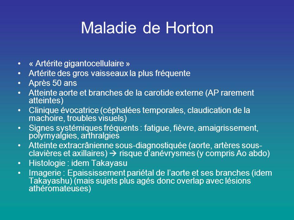 Maladie de Horton •« Artérite gigantocellulaire » •Artérite des gros vaisseaux la plus fréquente •Après 50 ans •Atteinte aorte et branches de la carot