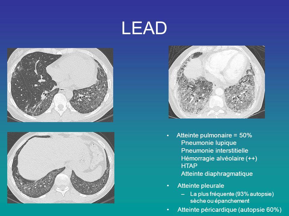 LEAD • Atteinte pulmonaire = 50% Pneumonie lupique Pneumonie interstitielle Hémorragie alvéolaire (++) HTAP Atteinte diaphragmatique •Atteinte pleural