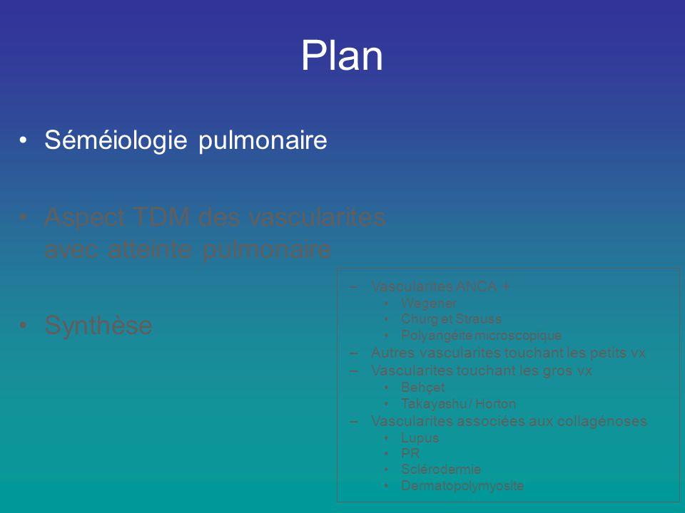 Rappel : Sd pneumo-rénal –Polyangéite microscopique –Wegener –Sd Goodpasture –LEAD –Purpura rhumatoïde