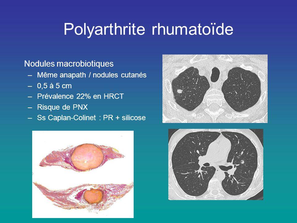 Nodules macrobiotiques –Même anapath / nodules cutanés –0,5 à 5 cm –Prévalence 22% en HRCT –Risque de PNX –Ss Caplan-Colinet : PR + silicose Polyarthr