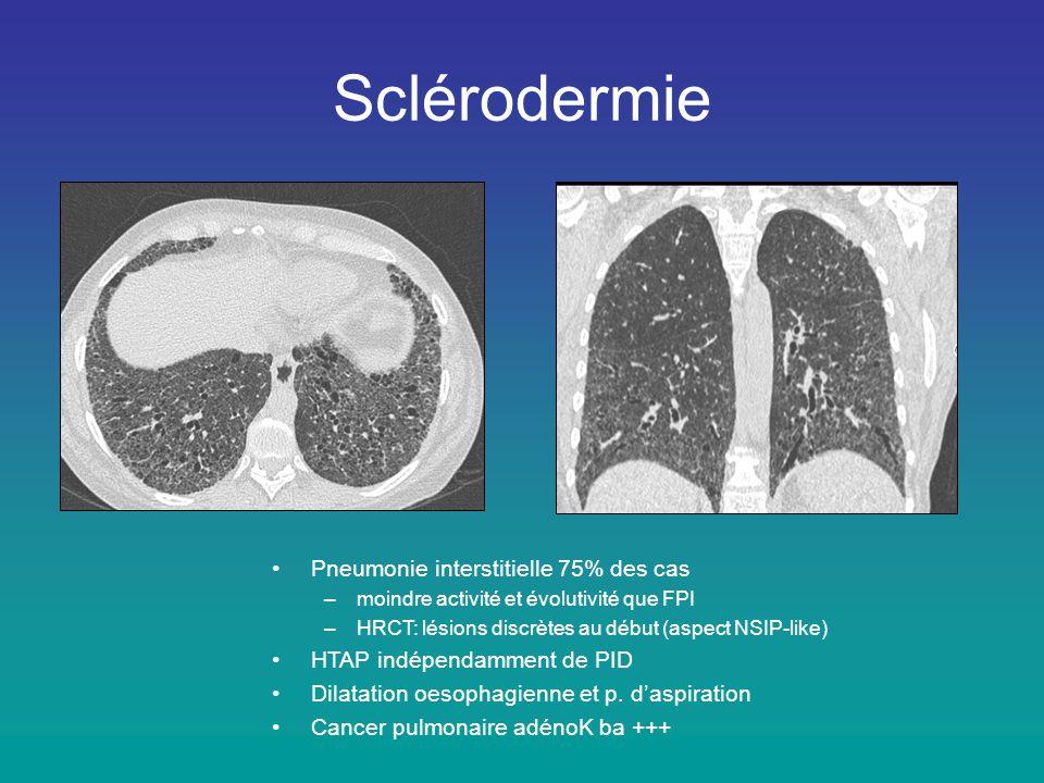Sclérodermie •Pneumonie interstitielle 75% des cas –moindre activité et évolutivité que FPI –HRCT: lésions discrètes au début (aspect NSIP-like) •HTAP
