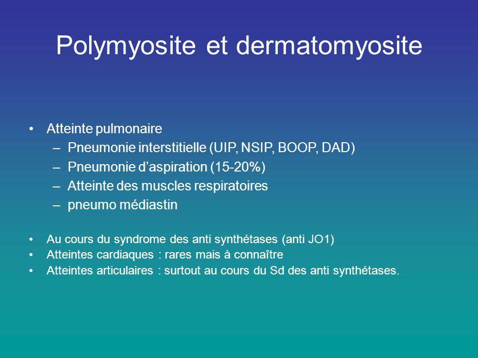 Polymyosite et dermatomyosite •Atteinte pulmonaire –Pneumonie interstitielle (UIP, NSIP, BOOP, DAD) –Pneumonie d'aspiration (15-20%) –Atteinte des mus