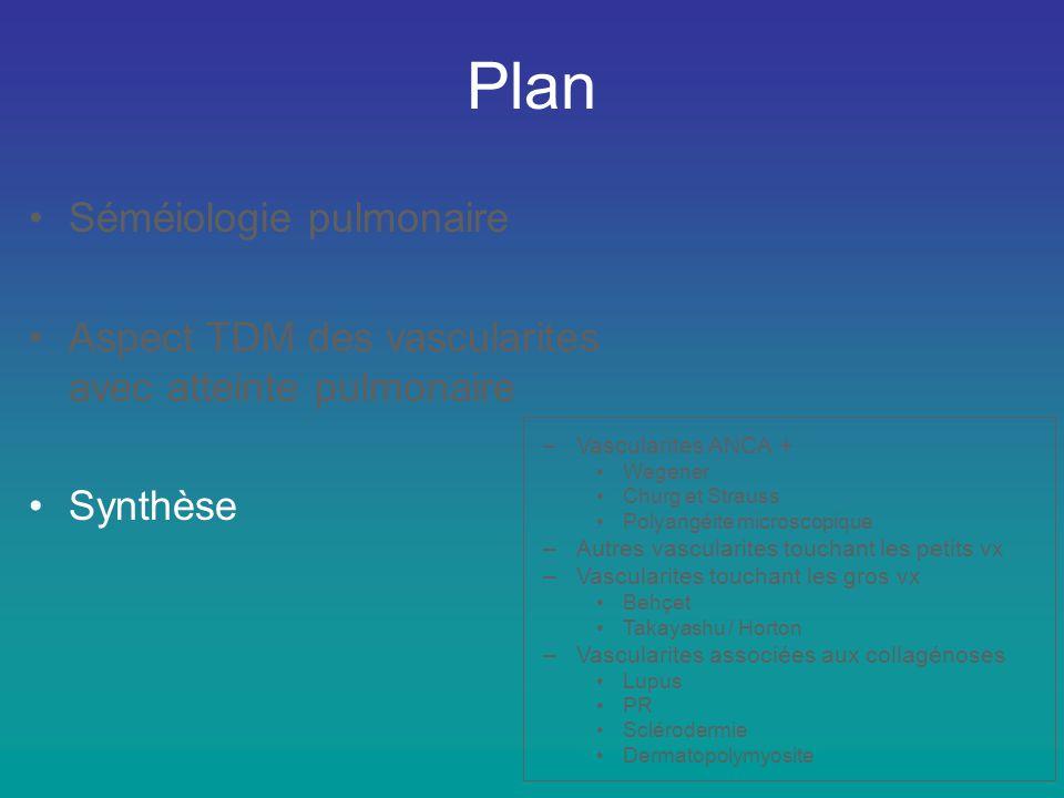 Plan •Séméiologie pulmonaire •Aspect TDM des vascularites avec atteinte pulmonaire •Synthèse –Vascularites ANCA + •Wegener •Churg et Strauss •Polyangé