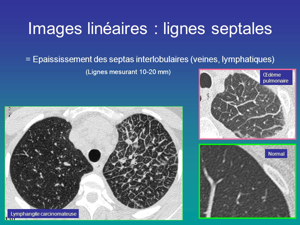 Images linéaires : lignes septales = Epaississement des septas interlobulaires (veines, lymphatiques) (Lignes mesurant 10-20 mm) Lymphangite carcinoma