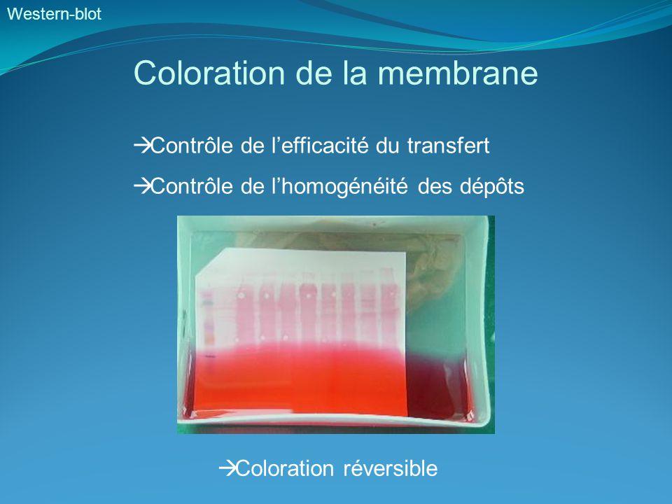 Western-blot Coloration de la membrane  Contrôle de l'efficacité du transfert  Contrôle de l'homogénéité des dépôts  Coloration réversible