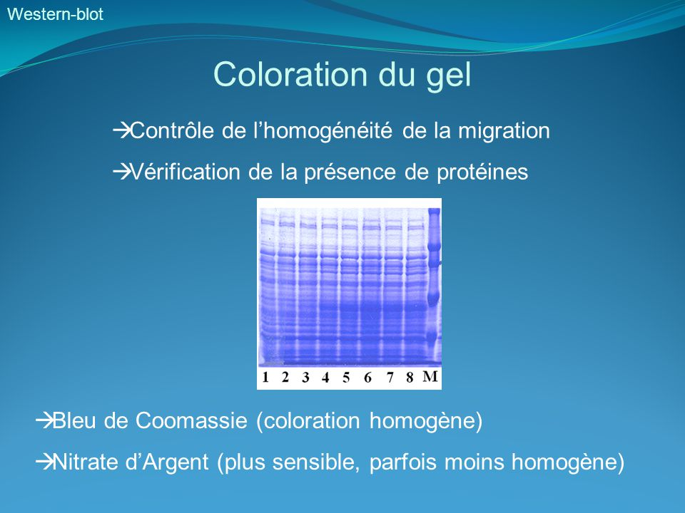 Western-blot Coloration du gel  Contrôle de l'homogénéité de la migration  Vérification de la présence de protéines  Bleu de Coomassie (coloration homogène)  Nitrate d'Argent (plus sensible, parfois moins homogène)