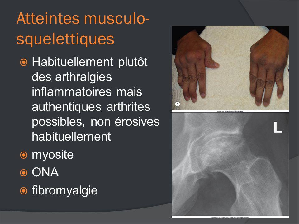 Atteintes musculo- squelettiques  Habituellement plutôt des arthralgies inflammatoires mais authentiques arthrites possibles, non érosives habituellement  myosite  ONA  fibromyalgie