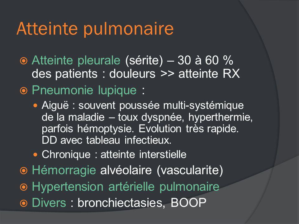 Atteinte pulmonaire  Atteinte pleurale (sérite) – 30 à 60 % des patients : douleurs >> atteinte RX  Pneumonie lupique :  Aiguë : souvent poussée multi-systémique de la maladie – toux dyspnée, hyperthermie, parfois hémoptysie.