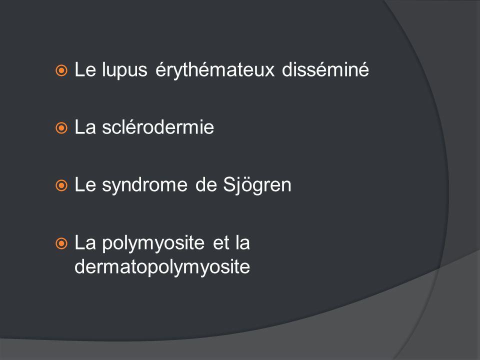 Le lupus érythémateux disséminé  La sclérodermie  Le syndrome de Sjögren  La polymyosite et la dermatopolymyosite