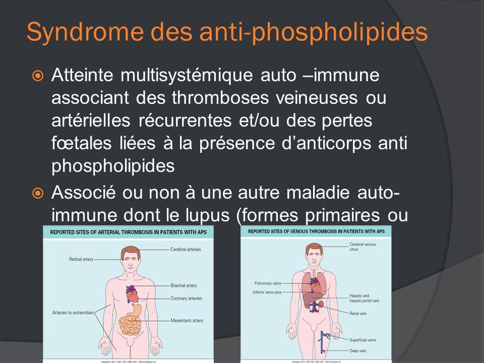 Syndrome des anti-phospholipides  Atteinte multisystémique auto –immune associant des thromboses veineuses ou artérielles récurrentes et/ou des pertes fœtales liées à la présence d'anticorps anti phospholipides  Associé ou non à une autre maladie auto- immune dont le lupus (formes primaires ou secondaires)
