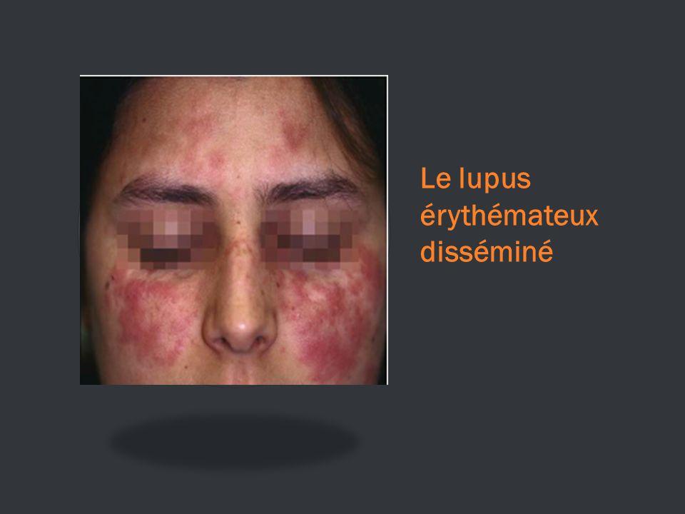 Le lupus érythémateux disséminé