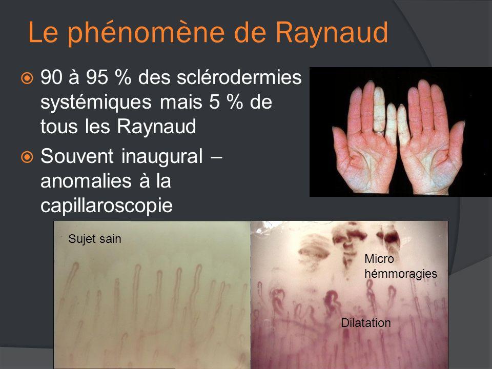 Le phénomène de Raynaud  90 à 95 % des sclérodermies systémiques mais 5 % de tous les Raynaud  Souvent inaugural – anomalies à la capillaroscopie Sujet sain Micro hémmoragies Dilatation