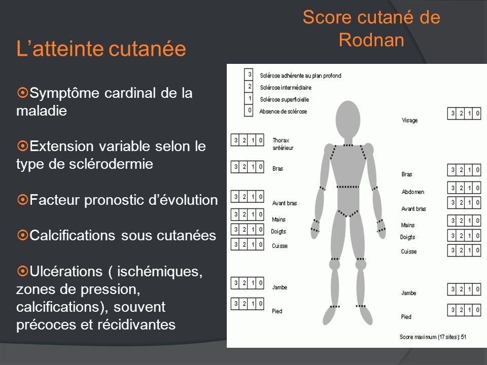 Score cutané de Rodnan L'atteinte cutanée  Symptôme cardinal de la maladie  Extension variable selon le type de sclérodermie  Facteur pronostic d'évolution  Calcifications sous cutanées  Ulcérations ( ischémiques, zones de pression, calcifications), souvent précoces et récidivantes