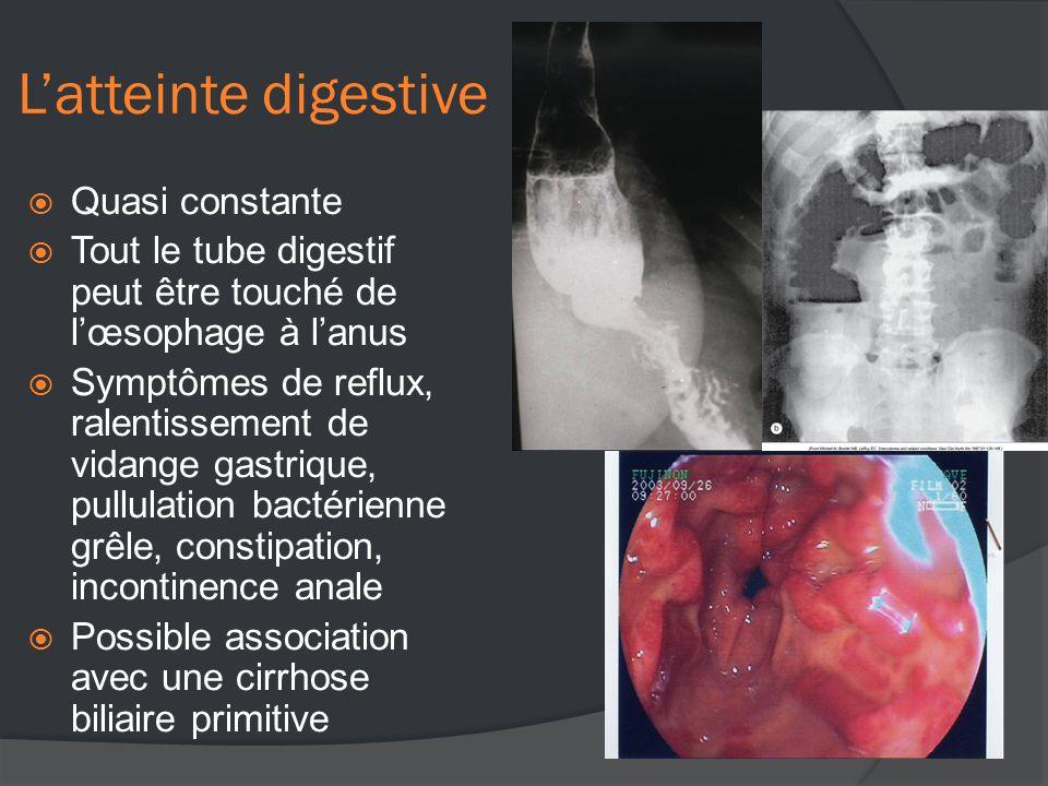 L'atteinte digestive  Quasi constante  Tout le tube digestif peut être touché de l'œsophage à l'anus  Symptômes de reflux, ralentissement de vidange gastrique, pullulation bactérienne grêle, constipation, incontinence anale  Possible association avec une cirrhose biliaire primitive