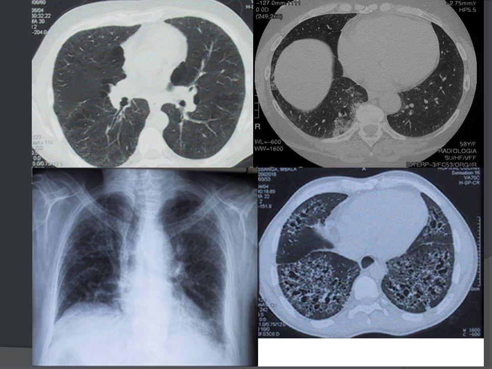 Pneumopathie infiltrante diffuse