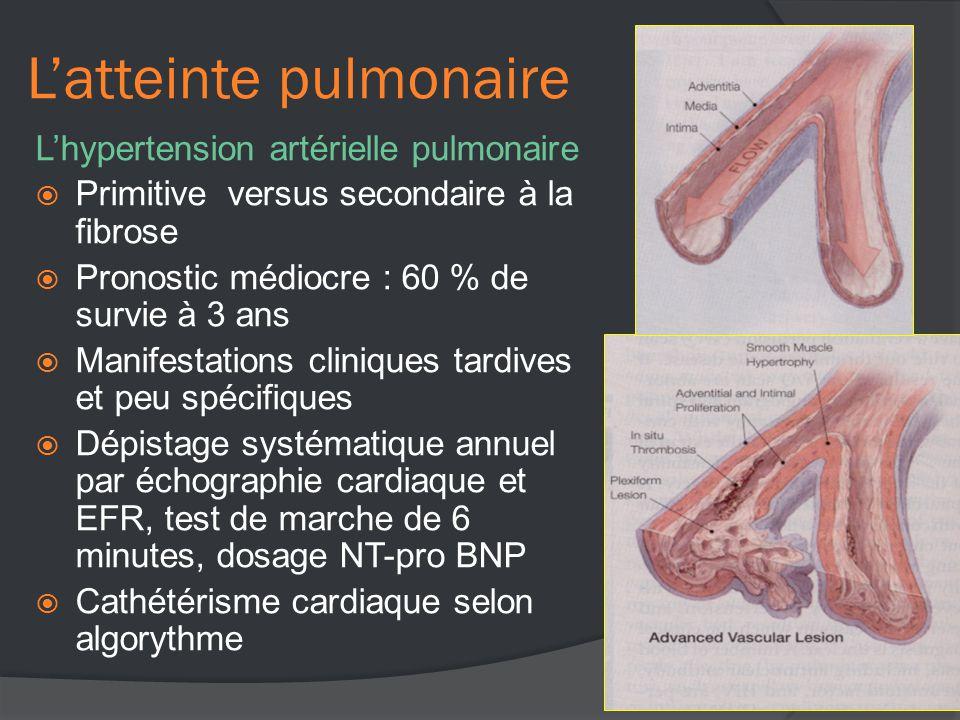 L'atteinte pulmonaire L'hypertension artérielle pulmonaire  Primitive versus secondaire à la fibrose  Pronostic médiocre : 60 % de survie à 3 ans  Manifestations cliniques tardives et peu spécifiques  Dépistage systématique annuel par échographie cardiaque et EFR, test de marche de 6 minutes, dosage NT-pro BNP  Cathétérisme cardiaque selon algorythme