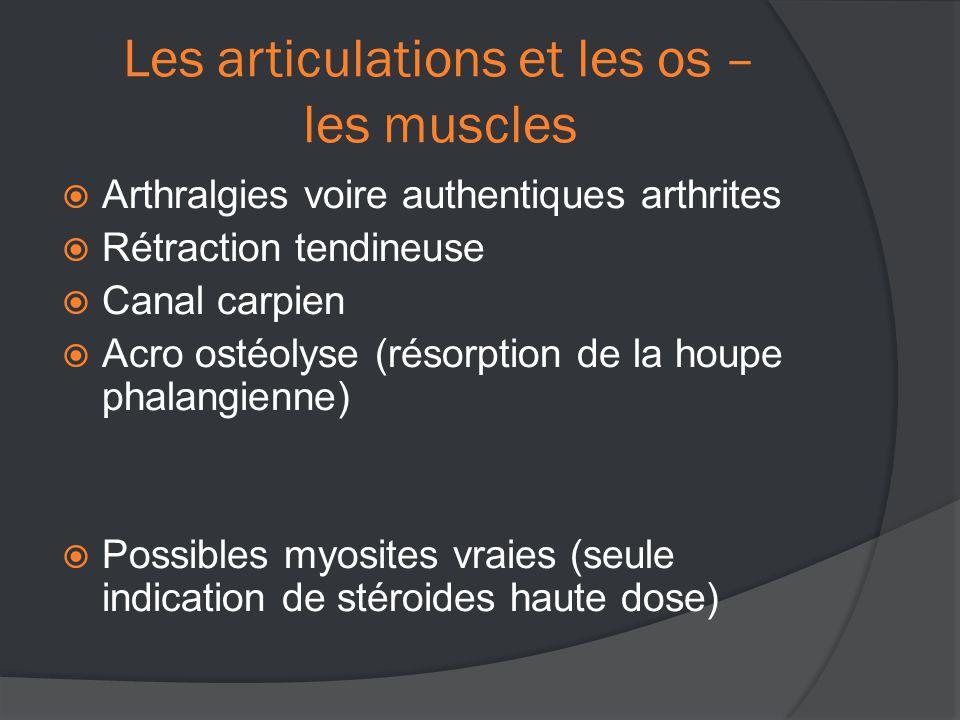 Les articulations et les os – les muscles  Arthralgies voire authentiques arthrites  Rétraction tendineuse  Canal carpien  Acro ostéolyse (résorption de la houpe phalangienne)  Possibles myosites vraies (seule indication de stéroides haute dose)