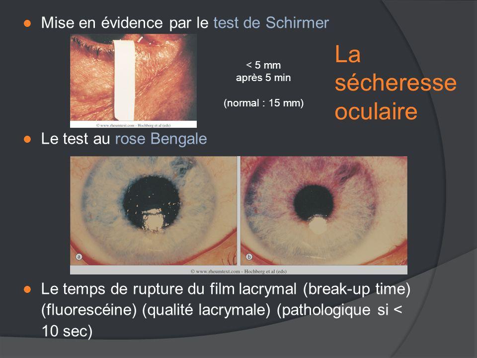  Mise en évidence par le test de Schirmer < 5 mm après 5 min (normal : 15 mm)  Le test au rose Bengale  Le temps de rupture du film lacrymal (break-up time) (fluorescéine) (qualité lacrymale) (pathologique si < 10 sec) La sécheresse oculaire