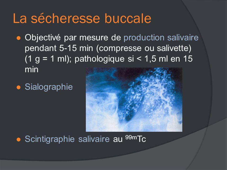  Objectivé par mesure de production salivaire pendant 5-15 min (compresse ou salivette) (1 g = 1 ml); pathologique si < 1,5 ml en 15 min  Sialographie  Scintigraphie salivaire au 99m Tc La sécheresse buccale