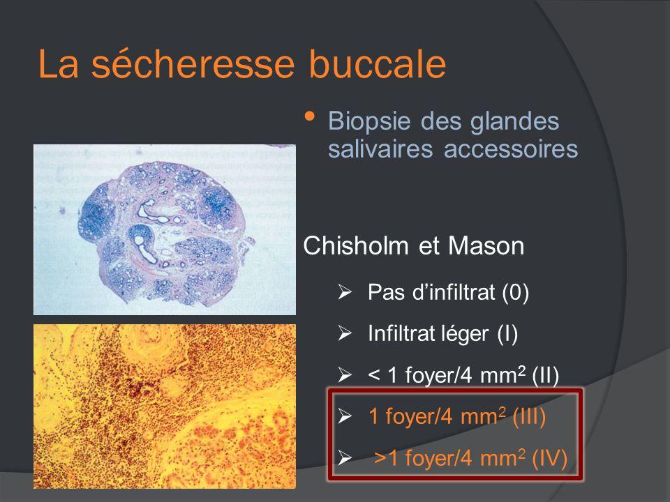 • Biopsie des glandes salivaires accessoires Chisholm et Mason  Pas d'infiltrat (0)  Infiltrat léger (I)  < 1 foyer/4 mm 2 (II)  1 foyer/4 mm 2 (III)  >1 foyer/4 mm 2 (IV)